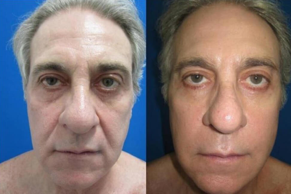 Facelift Clinica HUM