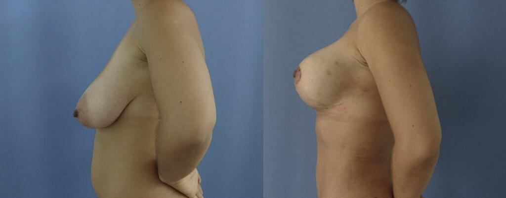 Levantamiento de senos Clinica HUM