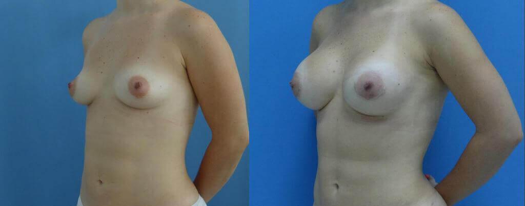 Aumento de senos mamoplastica Clinica HUM